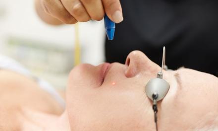 3 o 5 sesiones de acupuntura láser o electroacupuntura (sin agujas) desde 19,95 € en Somos Uno Murcia