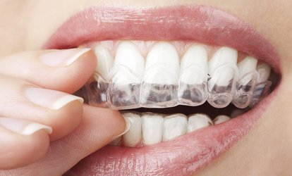 Clear, Nearly Invisible and Removable Braces for Both Arches at City Smile Dental (50% Off)