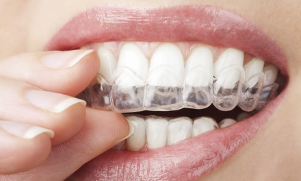 Clear Braces for One or Both Arches with Fixed Retainers at VidaDent (Up to 74% Off)