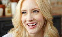 Dental Exam with Scale and Polish at Vince and Victoria (73% Off)