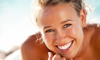 One-Hour Zoom or Philips Zoom Laser Teeth Whitening with Consultation at Smile Science Harley Street (Up to 81% off)