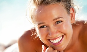 Smile Science Harley Street: One-Hour Zoom or Philips Zoom Laser Teeth Whitening with Consultation at Smile Science Harley Street (Up to 81% off)