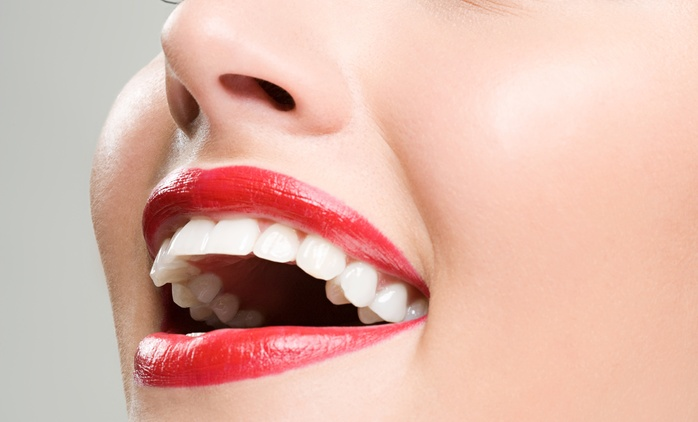 $29 Dental Exam and Two X-Rays, $59 with Scale and Polish or $129 to Add a Surface Filling at New Lynn Dentists