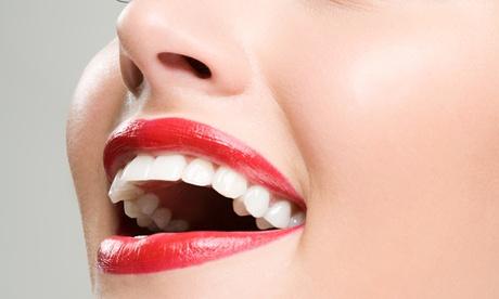 1 o 2 sesiones de blanqueamiento dental con luz led y limpieza bucal desde 49,90 € en Clínica Dental El Espinar