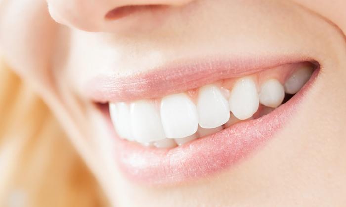 Yoran Hair Design - Gent: Un sourire éclatant grâce à un blanchiment des dents chez Yoran hairdesign à Gand