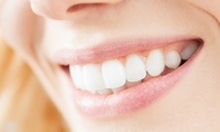 Teeth Whitening at Tooth Doctor (73% Off)