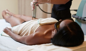 Toronto Laser Hair Removal Deals In Toronto On Groupon