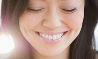 Dental Examination with Scale, Polish, X-Ray and Optional Teeth Whitening at Crosbie Dental (Up to 83% Off)