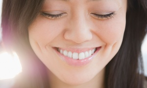 Crosbie Dental: Dental Examination with Scale, Polish, X-Ray and Optional Teeth Whitening at Crosbie Dental (Up to 83% Off)