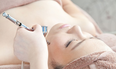 One Microdermabrasion Facial Treatments at Laser Derm Med Spa (Up to 74% Off)