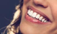 気になる銀歯を、笑顔が映える自然な白い歯へ≪ハイブリッドセラミックインレー(詰め物)1本 / 平日17時まで or 全日利用可≫ @k ...