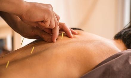 1 of 3 acupunctuurbehandelingen bij Beijing Praktijk op de Van Woustraat in Amsterdam