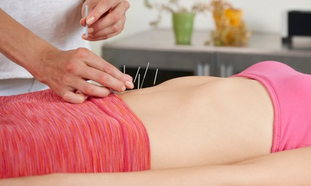 One or Two 40-Minute Acupuncture Sessions with Consultation and 10-Minute Cupping Session (Up to 78% Off)