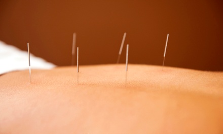 Consultation and One or Three 60-Minute Acupuncture Treatments at Central Acupuncture and Health (Up to 63% Off)