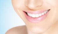 歯の裏側に付いたタバコのヤニや歯石などを除去して本来の歯の白さに≪審美ジェットクリーニング/1回分・2回分・3回分≫ @ブレーメンホワイ...