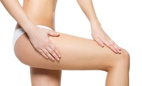 One or Two Sessions of Brazilian Buttocks Lift at OSM Cosmetic Clinic (Up to 70% Off)