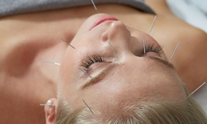 Ming Chen Clinics: Acupuncture Session with Optional Massage, Cupping Treatment or Revitalising Mask at Ming Chen Clinics (Up to 67% Off)