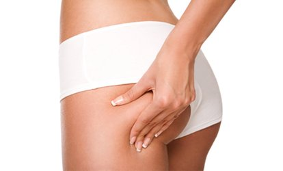 image for Two, Four or Six Sessions of Laser Lipolysis at Flawless Beautiful Skin
