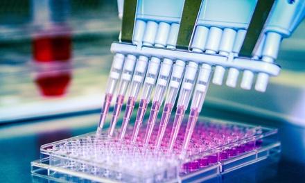 Analisi di sangue e urine a 39,99€euro