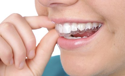 $28 for $1,500 Toward <strong>Invisalign</strong> and In-office Teeth Whitening at Reign Dental