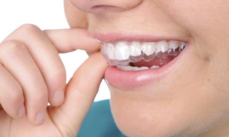 Férula de descarga blanda o rígida y limpieza bucal con fluorización desde 49,90 € en Clínica dental Selvadent