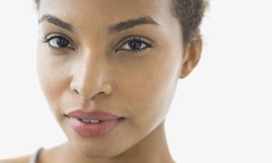 Angels Nails And Kosmetik: Plasma Lift für beide Unter- oder/und Oberlider inkl. Beratung bei Angels Nails And Kosmetik (bis zu 73% sparen*)