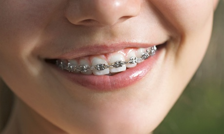 Tratamiento de ortodoncia con brackets metálicos y 6 meses de revisiones por 199,95 € en C&S Dental Alhaurín