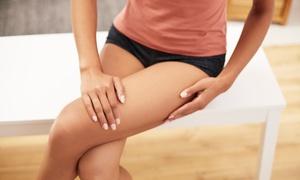 Dermomedical: 5 sedute di ultrasuoni cavitazionali abbinati a pressoterapia al centro Dermomedical (sconto 91%)