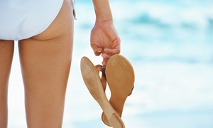 Up to 69% Off Laser Hair Removal Sessions at SlimUp