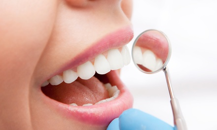 Dental Exam with Scale and Polish