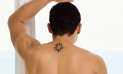 Up to 67% Off Tattoo-Removal Sessions at Art of Esthetiques
