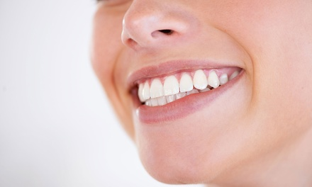 1, 2, 3, 4, 5 o 6 implantes dentales y limpieza bucal desde 489 € en Clínica Dental Ortocenter