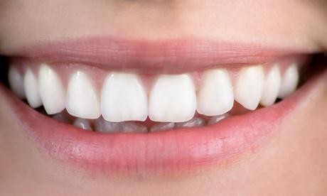 Férula dental a elegir con limpieza y revisión desde 39,95 € en G Dental