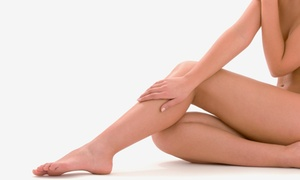 Derma-Aesthetic Laser & Electrolysis Center: $375 for Laser Spider-Vein-Removal Treatments at Derma-Aesthetic Laser & Electrolysis Center ($2,500 Value)