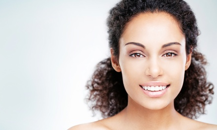 Four, Six, or Eight Facial Microdermabrasions at Distinction Salon & Spa (Up to 75% Off)