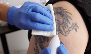 My body essentials: Two or Four Sessions of Laser Tattoo Removal on Small or Medium Area at My Body Essentials (Up to 82% Off)