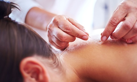 One Acupuncture Session at University Health Associates (Up to 60% Off)