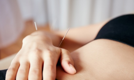 One or Three 60-Minute Acupuncture Sessions at Flow Acupuncture (Up to 70% Off) 201c7130-623e-43f0-afca-13a7ef6b5b0d