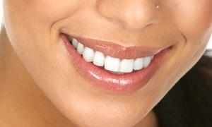 Medical Expert: Wybielanie zębów lampą LED za 129 zł i więcej opcji w Medical Expert