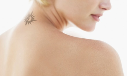 Three Laser Tattoo Removal Sessions on a Choice of Areas at Neo Beauty (Up to 71% Off)