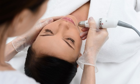 One or Two Microdermabrasion Treatments at Love Your Skin RX (Up to 68% Off)
