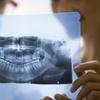 Sprawdź stan swoich zębów: pantomogram