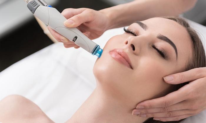 Limpieza facial laser