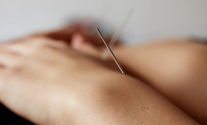 One, Two, or Three 60-Minute <strong>Acupuncture</strong> Treatments at Total Rejuvenation Center (Up to 77% Off)