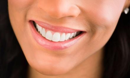 1, 2 o 4 sesiones de higiene dental con revisión, pulido y fluorización desde 9,99 € en Integra Oral