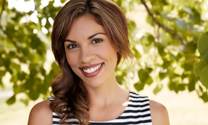 HS Mann DDS: In-Office Teeth Whitening or Dental-Exam Package at HS Mann DDS (Up to 80% Off)