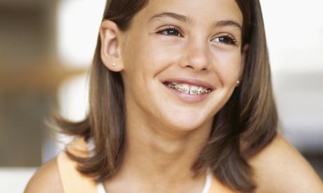 Ortodoncia con brackets a elegir entre metálicos, de porcelana o de zafiro desde 259 € en Ortodoncia Del Campillo