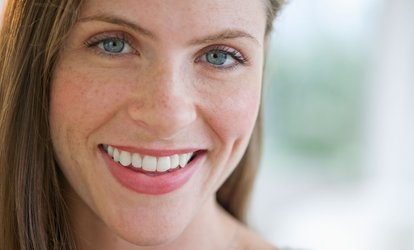 One or Two 90-Minute Radio Frequency Eye Lifts at Superb Skin Clinic (Up to 88% Off)