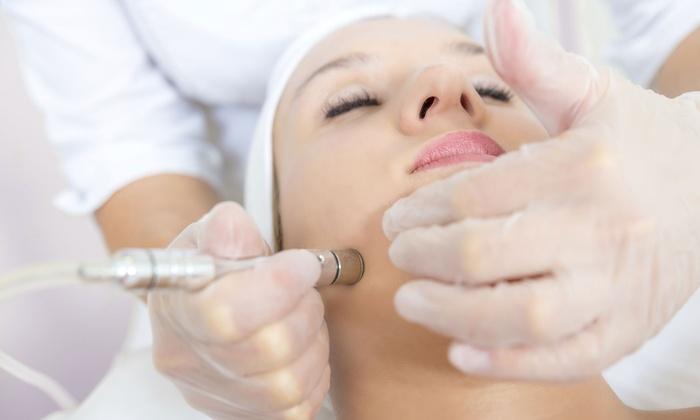 I Beauty Center - Baylands: $39 for $100 Worth of Microdermabrasion — I Beauty