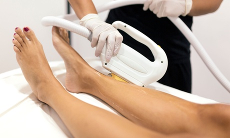 Laser Hair Removal at MedSpa Deluxe (Up to 78% Off). Six Options Available. 75ec9442-18e5-473f-9111-e78fe2537a03